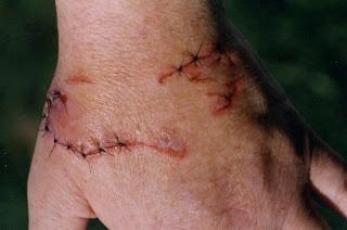 Iguana Bite Wound